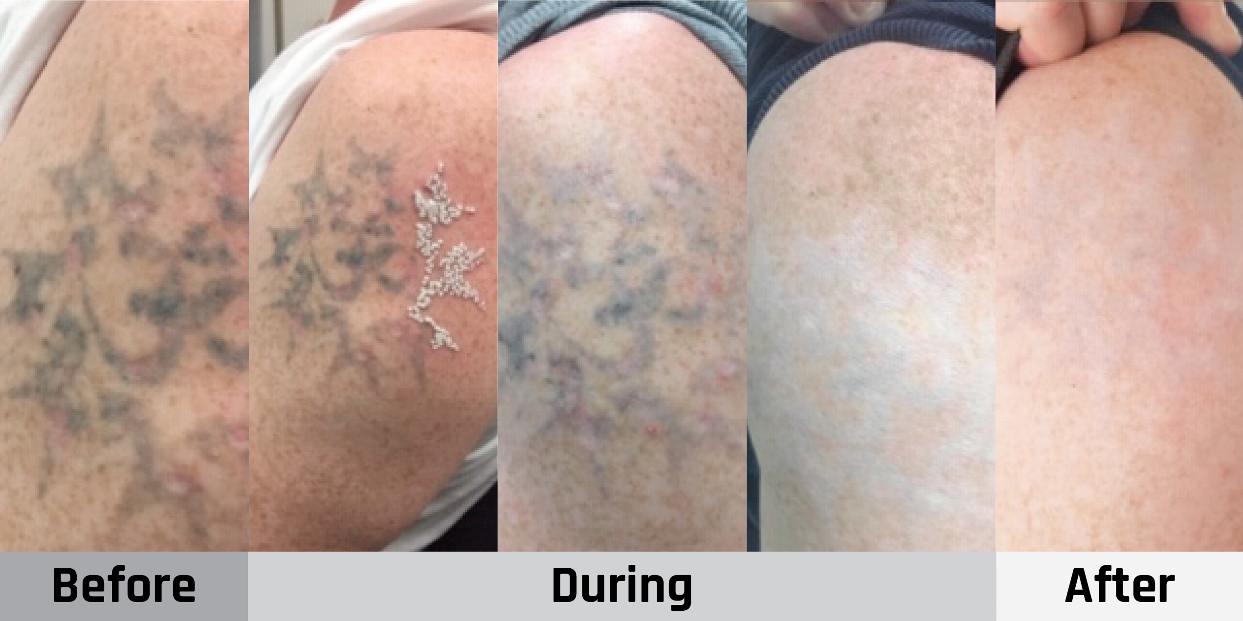 Gold Coast Tattoo Removal – It's Time to Love the Skin You're In